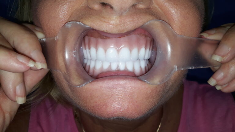 dentista dentadura cancun