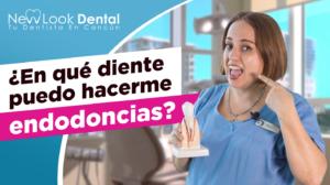 ¿En qué diente puedo hacerme endodoncias?