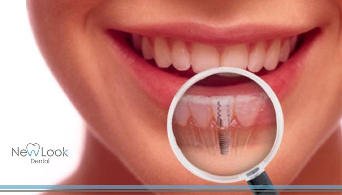 Todo lo que no te has atrevido a preguntar sobre los implantes dentales
