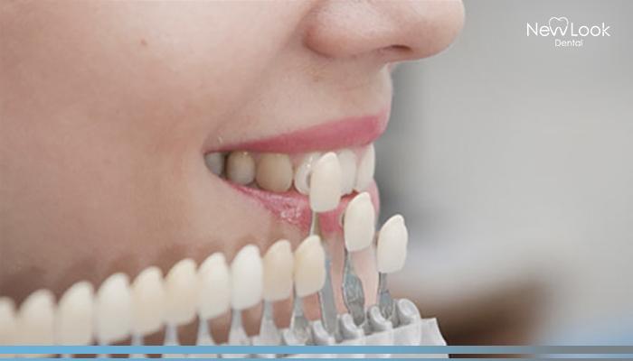 Mejora la apariencia de tus dientes con las carillas dentales