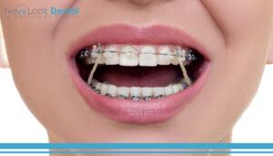 Brackets estéticos: zirconia y zafiro para una sonrisa como diamantes