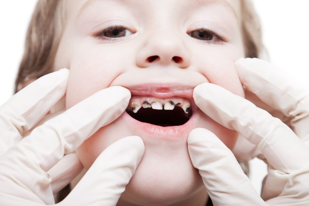 dental health kids