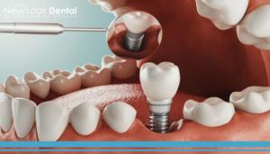 Osteointegración e Implantes Dentales