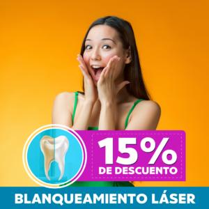 Blanqueamiento láser: 15% de descuento