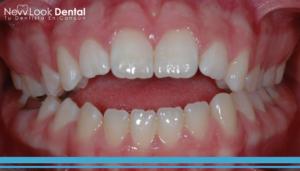 Mordida abierta y ortodoncia